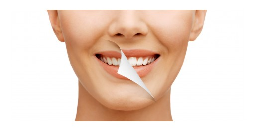 The Sacramento Dentistry Group Answers: Do Home Tooth Whiteners Work?