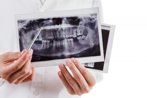 The Sacramento Dentistry Group Discusses Dental X-Rays